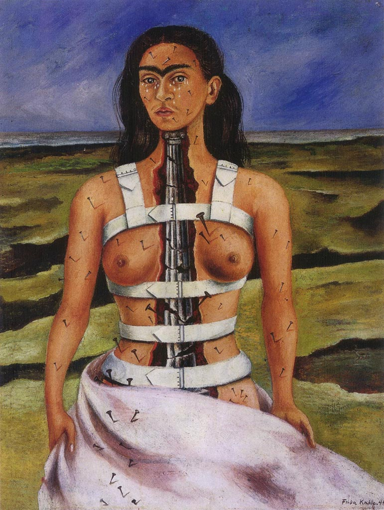 "Фрида Кало (Frida Kahlo), ""The Broken Column"""
